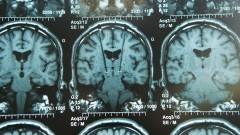 גירוי אלקטרוני של המוח (צילום: אילסוטרציה)